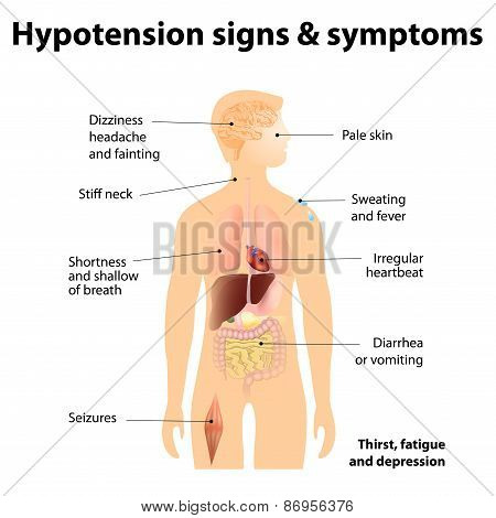 Hypotension Signs & Symptoms