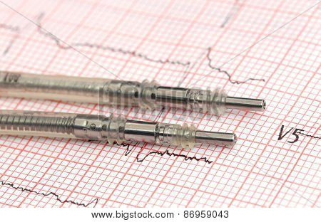 Pacemaker Leads On Electrocardiograph