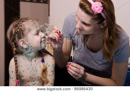 Mama Misses The Child With Chickenpox Sores Zelenkoj