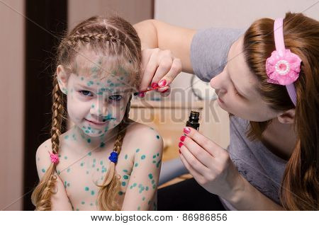 Mom Cauterize Zelenkoj Chickenpox Rash In A Child