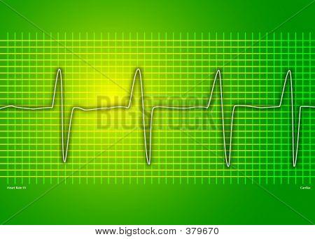Cardio verde
