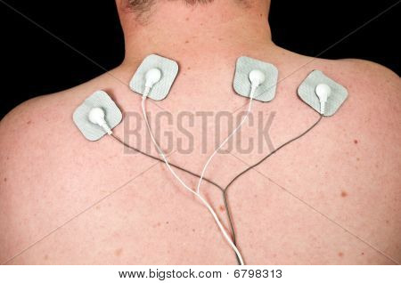 Male With Acute Neck Pain, Electrodes To Tens Unit