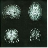 picture of pre-adolescent child  - Brain Scan of a pre - JPG