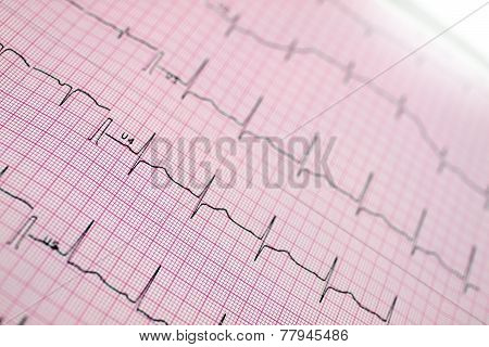Ecg. The Stylized Photo