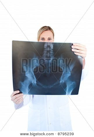 Assertive Female Doctor Hold Ing A X-ray