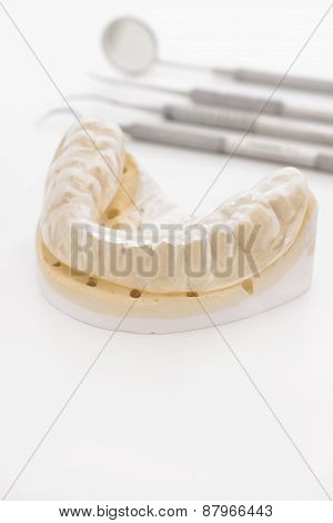 Orthodontic Cast