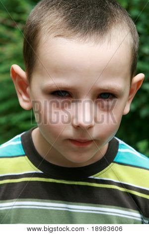 Boy with allergy, conjunctivitis and black rings round his eyes