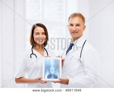 healthcare, medical and radiology concept - two doctors showing x-ray on tablet pc