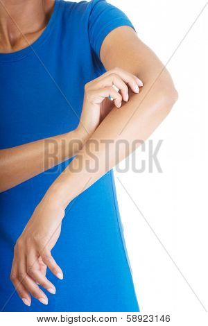 Young woman scratching her self. Isolated on white