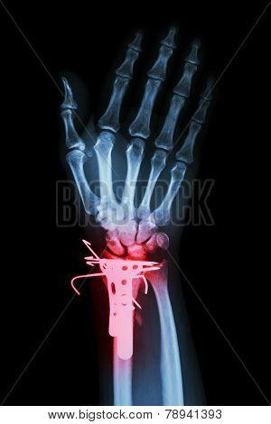 film x-ray wrist AP : show fracture distal radius (forearm's bone)