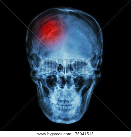 X-ray asian skull (Thai people) and headache and stroke