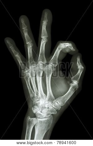 X-ray Hand With Ok Symbol
