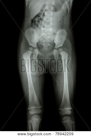 Film X-ray Normal Body Of Child (abdomen,buttock,thigh,knee)