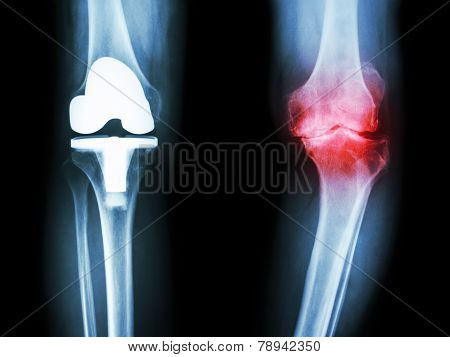 X-ray Knee Of Osteoarthritis Knee Patient And Artificial Joint