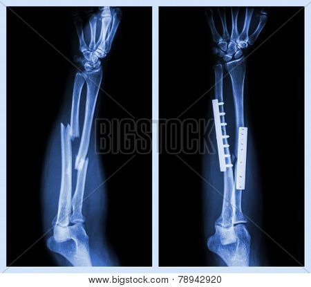 Fracture both bone of forearm