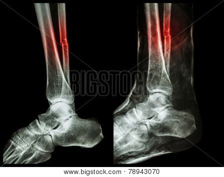 Fracture shaft of fibula (calf bone)