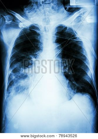 Pneumonia With Respiratory Failure