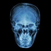 stock photo of cranium  - X  - JPG