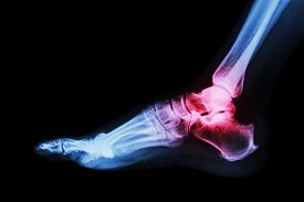 picture of human toe  - Arthritis at ankle joint  - JPG