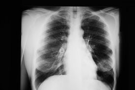 stock photo of pneumonia  - Forty year old woman with a left lower lobe pneumonia - JPG