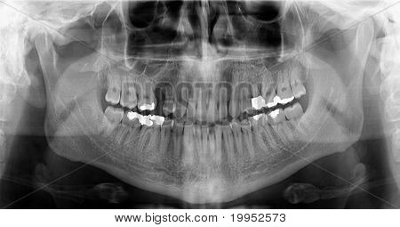 Dental Orthopantomogram