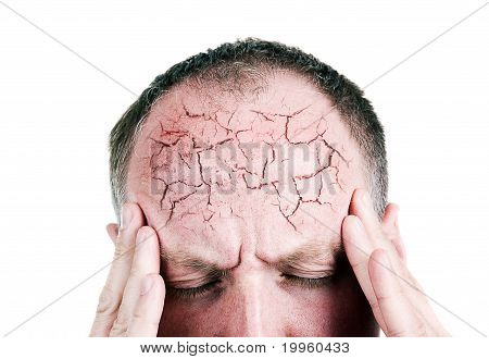 Mid Aged Man Suffering From Headache