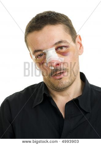 Broken Nose Post Operation