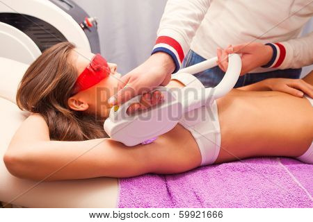 woman laser epilation armpit