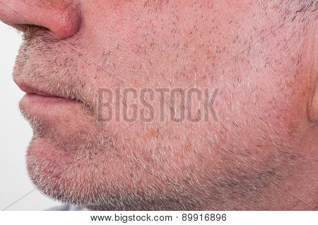 Stubble on face