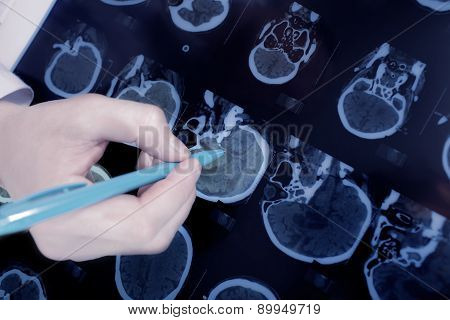 Close-up Of The Doctor Hand Pointing To The Brain Ct