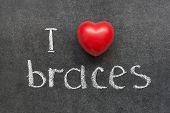 picture of braces  - I love braces phrase handwritten on chalkboard with red heart symbol - JPG