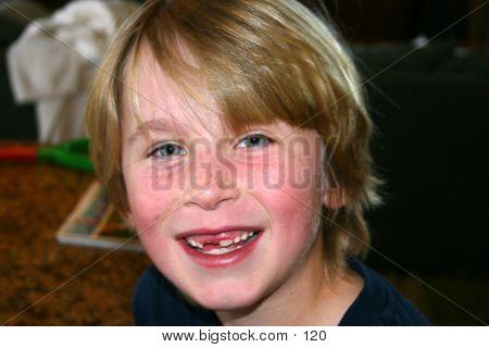 Niño con pérdida de diente